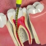 Root Canal Treatment: What Else You Need To Know About It?