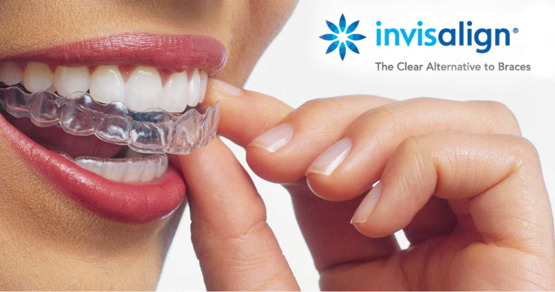 most common question on invisalign