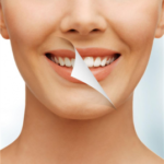 7 Simple Tips for Teeth Whitening in Daily life