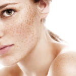 melasma remedy