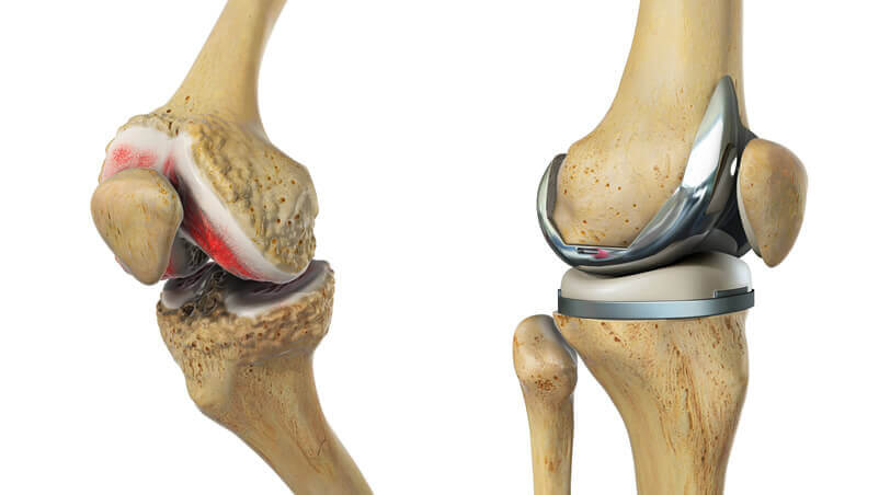 knee replacement surgeon in india
