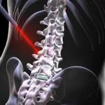 spine surgeon in bangalore
