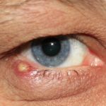 How to Get Rid of a Stye Inside Your Eyelid: Home Remedies and Treatments