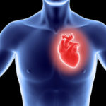 Heart Transplant Cost in India