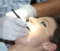 Dental In Downtown Los Angeles CA