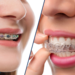 Braces or Invisalign Which is The Best For You